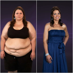 Dating after extreme weight loss